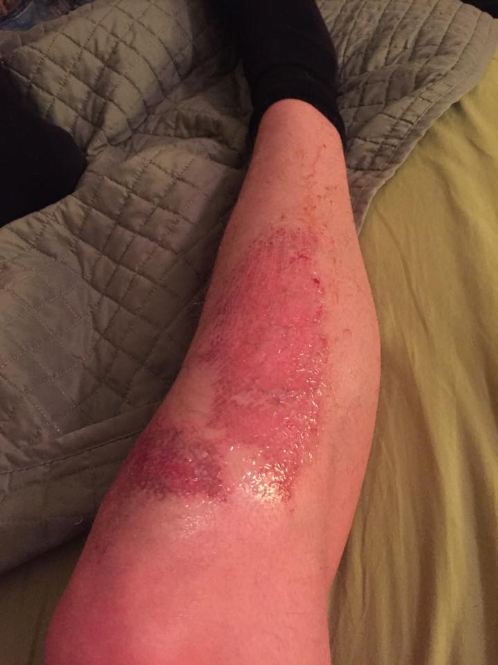 """The struggle of playing soccer on turf. Some lost skin and pain for days."" -Steven Wagner"